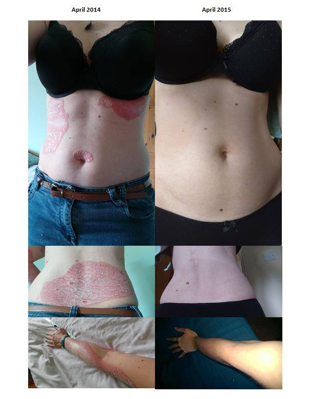 helminthic therapy psoriasis)
