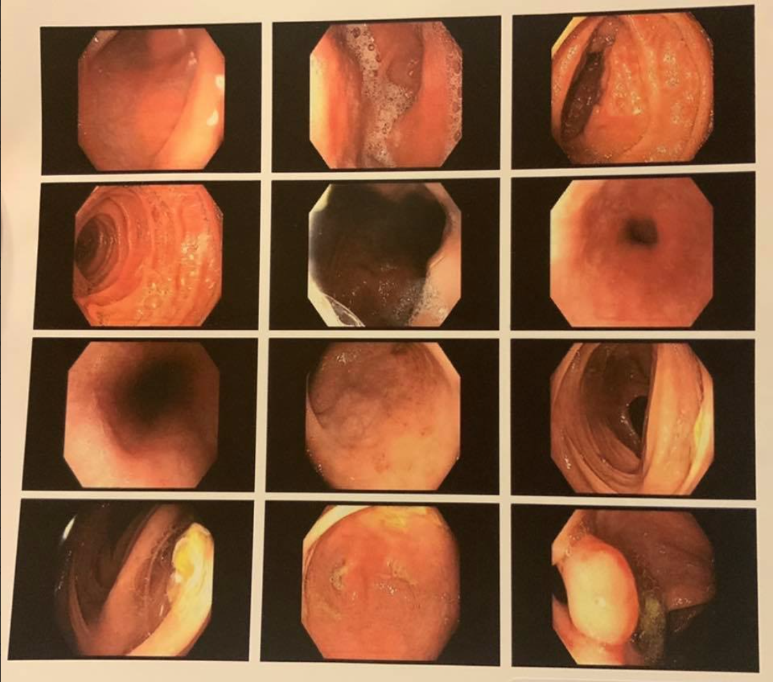 Colonoscopy images of a Crohn's colitis patient after 5 years with NA and TTO.png