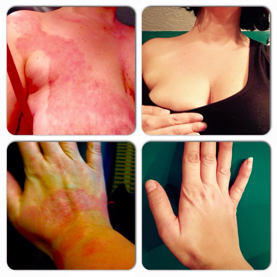 helminthic therapy for eczema)