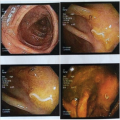 Colonoscopy images of a colitis patient after 5½ years with NA and TTO.png