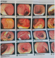 Colonoscopy images of an ulcerative colitis patient after 5 years with TTO.png